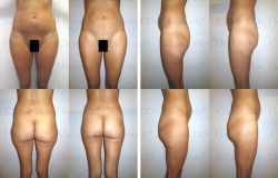Microcannular liposuction on belly, hips, buttocks, and outer thighs