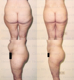 Microcannular liposuction on belly, buttocks, and outer thighs