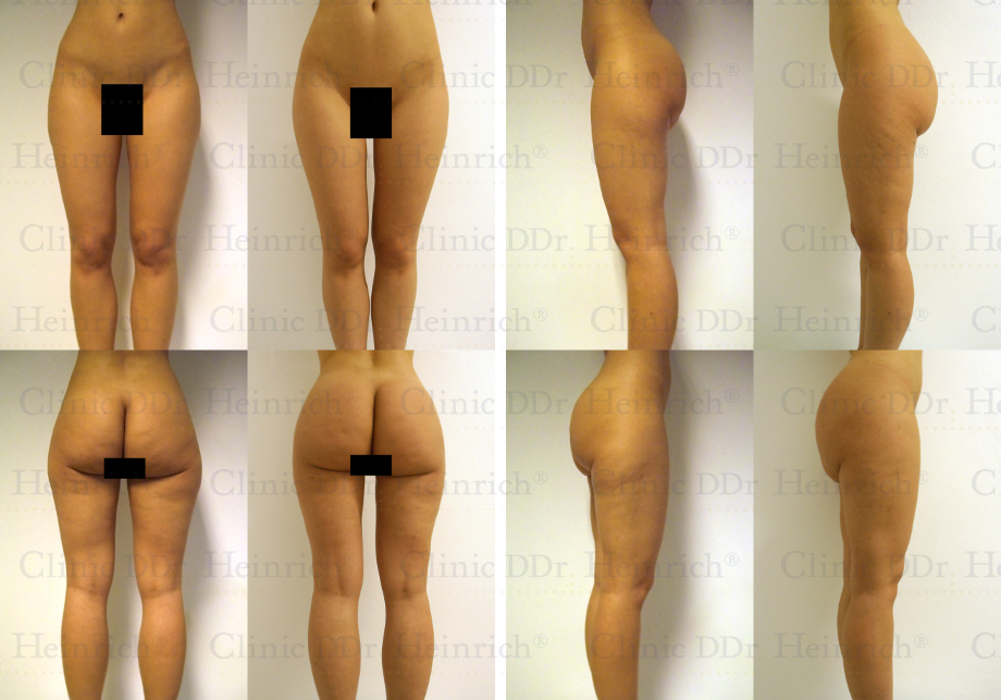 Liposuction on the Hips, Buttocks, and Thighs (Saddle-bags ...