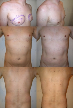 Microcannular liposuction on breast, belly, and buttocks