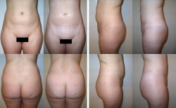 Microcannular liposuction on waist, upper belly, lower belly, and hips