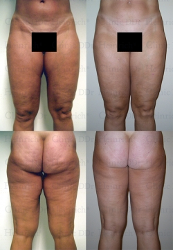Microcannular liposuction on buttocks, outer thighs, inner thighs, and knees