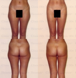 Microcannular liposuction on outer thighs